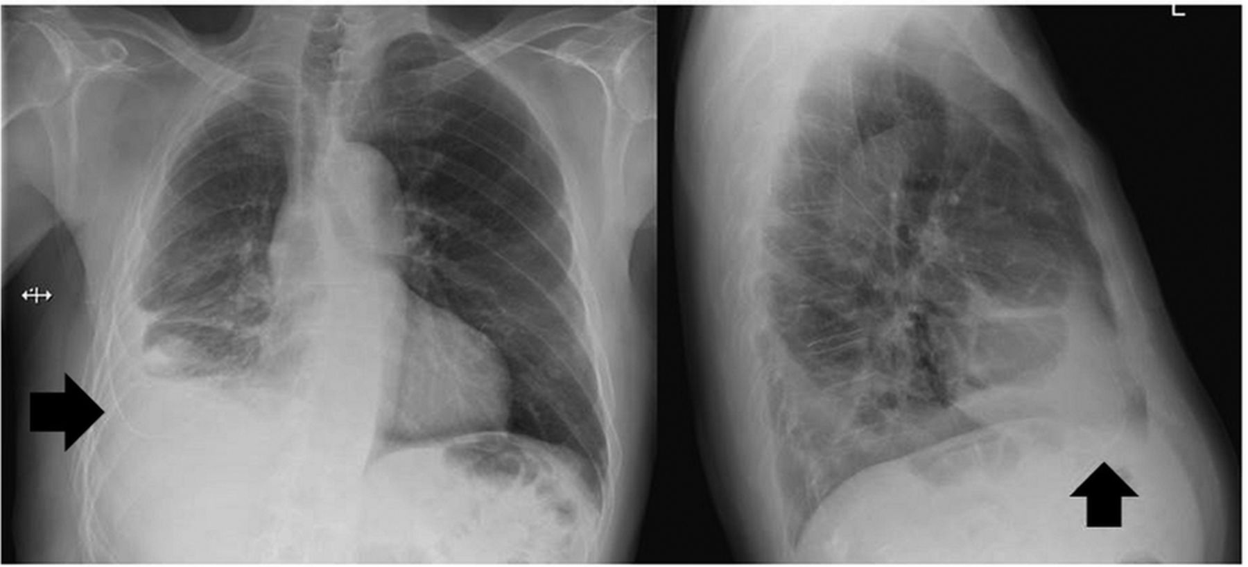 Complications of indwelling pleural catheter use and their